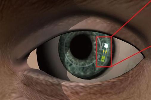 据麦姆斯咨询报道,科学家们设计了一种智能隐形眼镜(如下图),可以不用针就能测量使用者的血糖。到目前为止,这种无针型原型产品只在兔子身上进行过测试,并且还不清楚是否可以用眼泪精确地监测血糖。